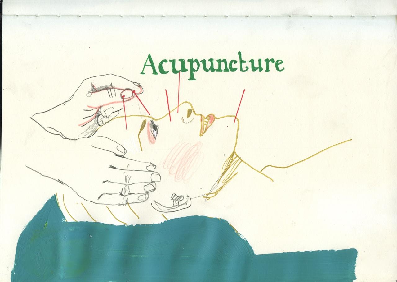 Acupuncturesml